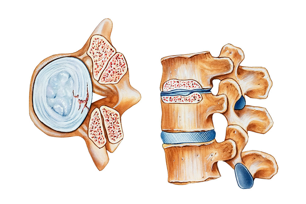 Spinal Stenosis and MIS